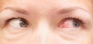 fbdfbdfmvbldfjvbfdsvmklmvinjmjiiii8b9uyjmcflxc 300x144 طبق نظر و مشاوره از دکتر چشم پزشکی روش های درمان انواع افتادگی پلک و عفونت چشم چیست؟